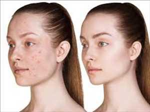 Mercado global de tratamiento del acné