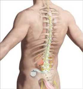 Mercado global de estimuladores de médula espinal